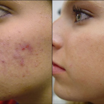Acne No More Review – Find If You Can Get Rid of Acne and Scars with Mike Walden's Treatment