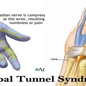 Carpal Tunnel Syndrome: Do You Have it?