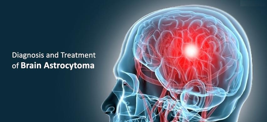 astrocytoma in Germany